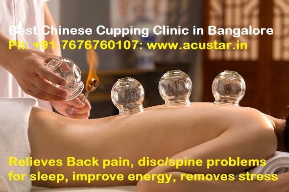 Acupressure Cupping Therapy