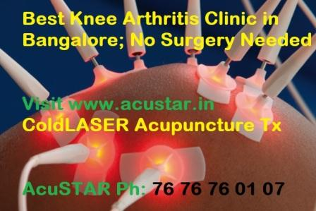 Best Acupuncturist, Acupuncture Treatment Pain Clinic ...